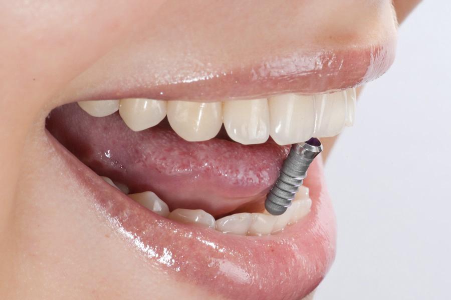 Имплантация зубов в караганде, доступные цены, высокое качество